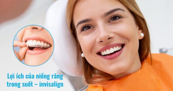 Lợi ích của niềng răng trong suốt – invisalign