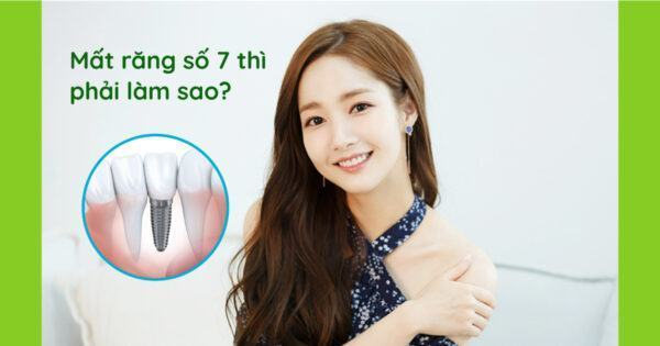 Mất răng số 7 chọn cấy ghép implant hay làm cầu răng sứ?
