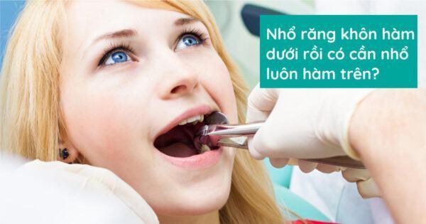 Nhổ răng khôn hàm dưới rồi có cần nhổ luôn hàm trên?