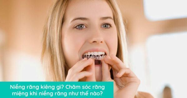 Niềng răng kiêng gì? Chăm sóc răng miệng khi niềng răng như thế nào?