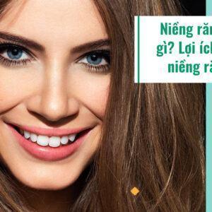Niềng răng là gì? Lợi ích của niềng răng
