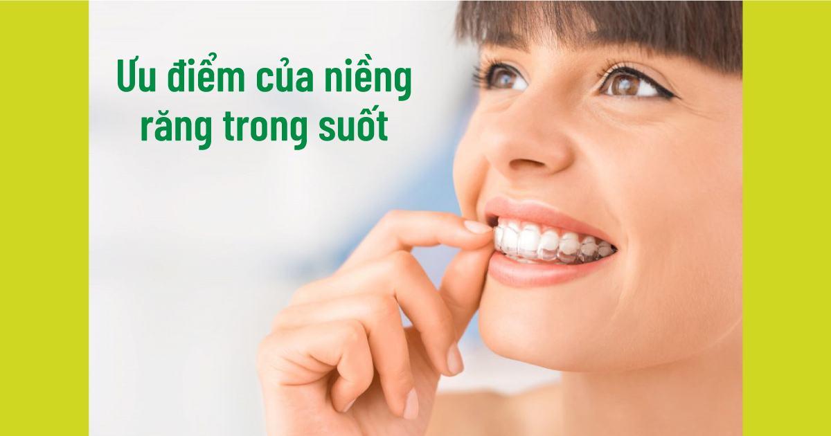 Ưu điểm của niềng răng trong suốt