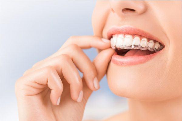 Lợi ích đến từ niềng răng trong suốt – invisalign