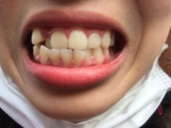 Niềng răng: Công cuộc cải cách bộ nhá!