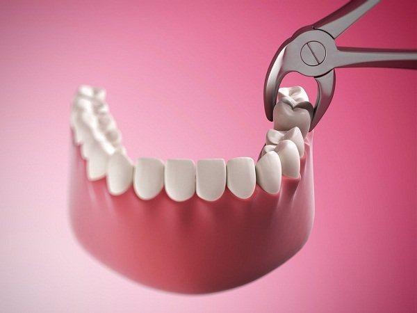 nhổ răng số 8 có nguy hiểm ko?