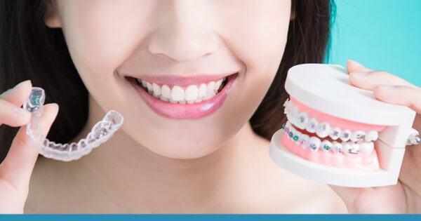 Niềng Răng Invisalign là gì ?