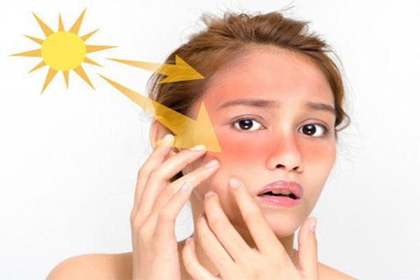 Tránh ánh sáng mặt trời chiếu và chiếu trực tiếp trong vòng 24 giờ