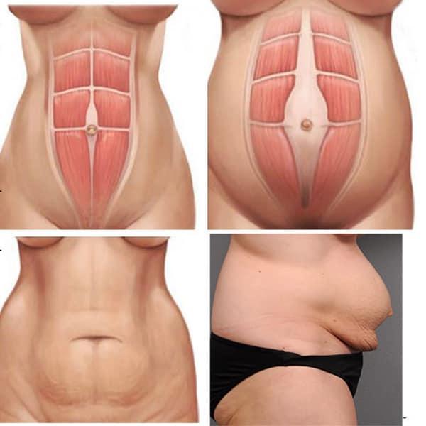 Tách cơ bụng sau sinh là gì? Bài tập chữa sổ bụng sau sinh cực hiệu quả
