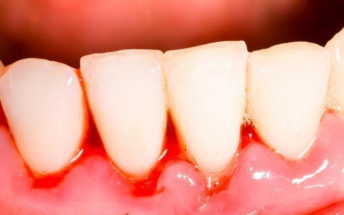 bệnh nướu răng không hợp đến dán sứ veneer