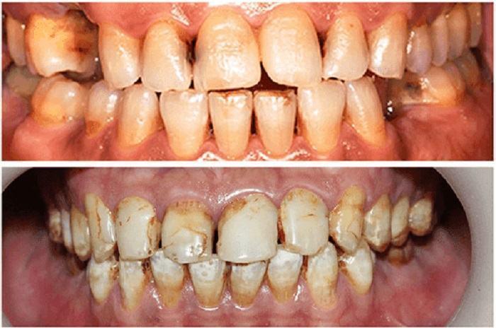 dán sứ veneer là gì: răng bị vết bẩn, ố răng nghiêm trọng: