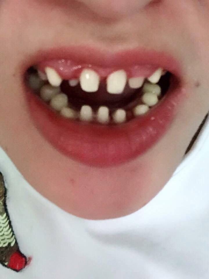 Răng sứ khi tháo ra