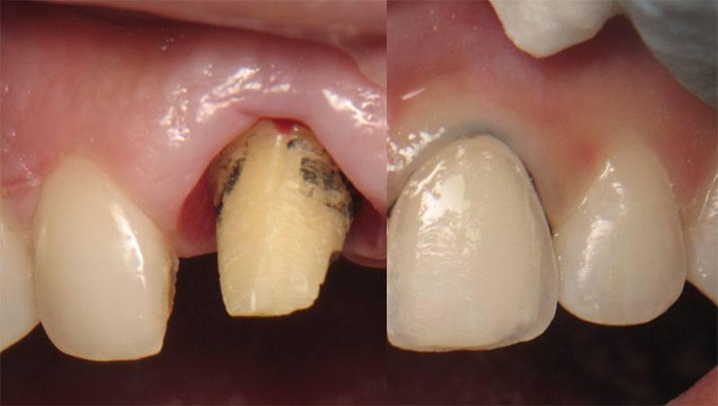 Tác hại của dán sứ veneer và răng sứ thẩm mỹ