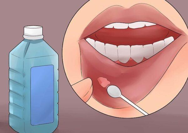 Cách chữa trị nhiệt miệng